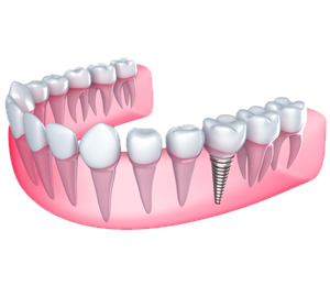 Renton Implant Dentistry