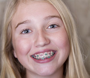 renton orthodontic treatments